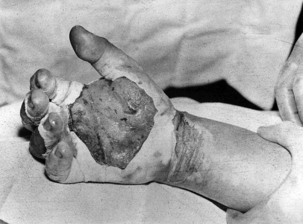 Harry K. Daghlian's blistered and burnt hand after he received his fatal radiation dose from his own dragon-tickling experiment gone wrong.